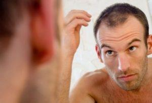 تعلم كيف تتعامل مع تساقط الشعر
